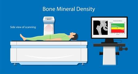 骨粗鬆症の検査は骨密度検査